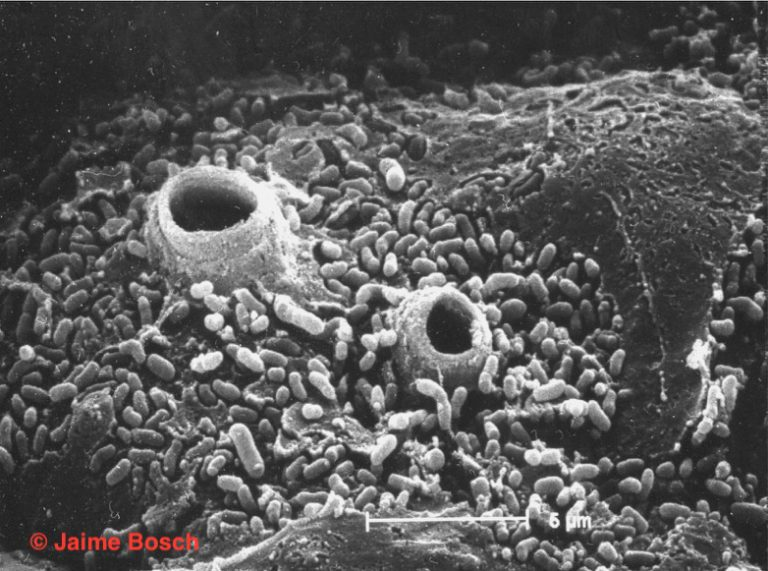 Epidermis de un sapo muerto por quitridiomicosis en el que se observan los tubos de descarga de los esporangios de B. dendrobatidis . Microscopio electrónico de barrido © Jaime Bosch